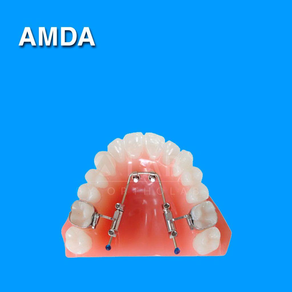 AMDA Aparatologia Ortodoncia con Microtornillos