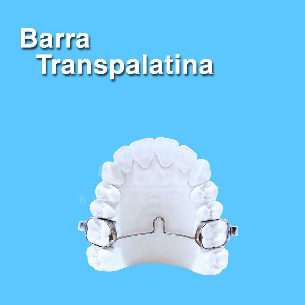 Barra Transpalatina Aparatologia Fija