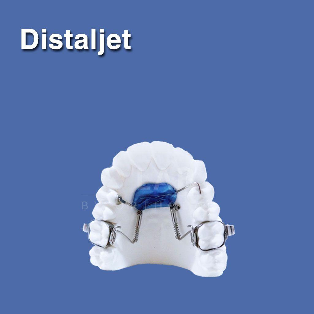 Distaljet aparatologia fija ortodoncia disyuncion dx