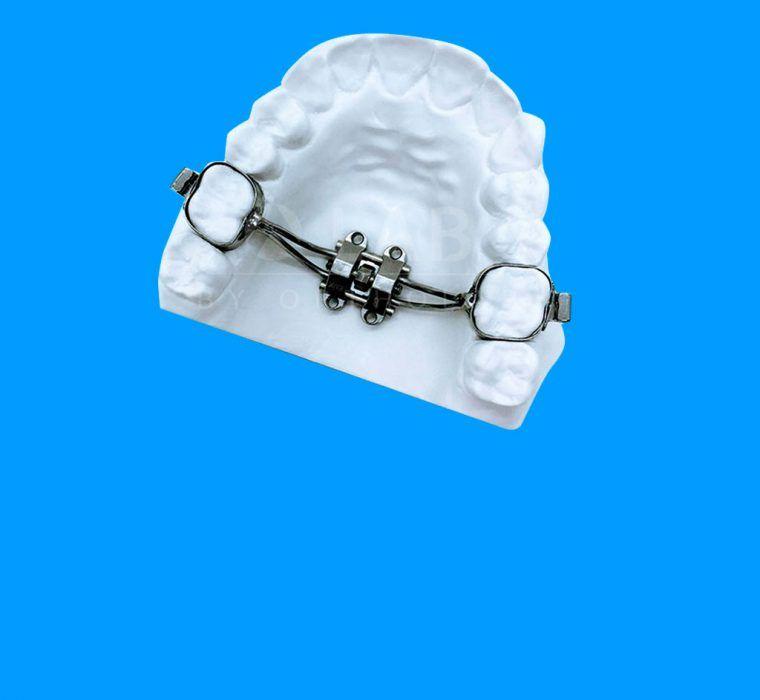 Disyuntor MSE II aparatologia ortodoncia con microtornillos