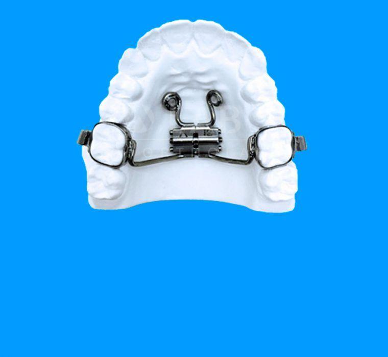 Disyuntor con Microtornillos (Método Directo) Aparatologia ortodoncia con microtornillos