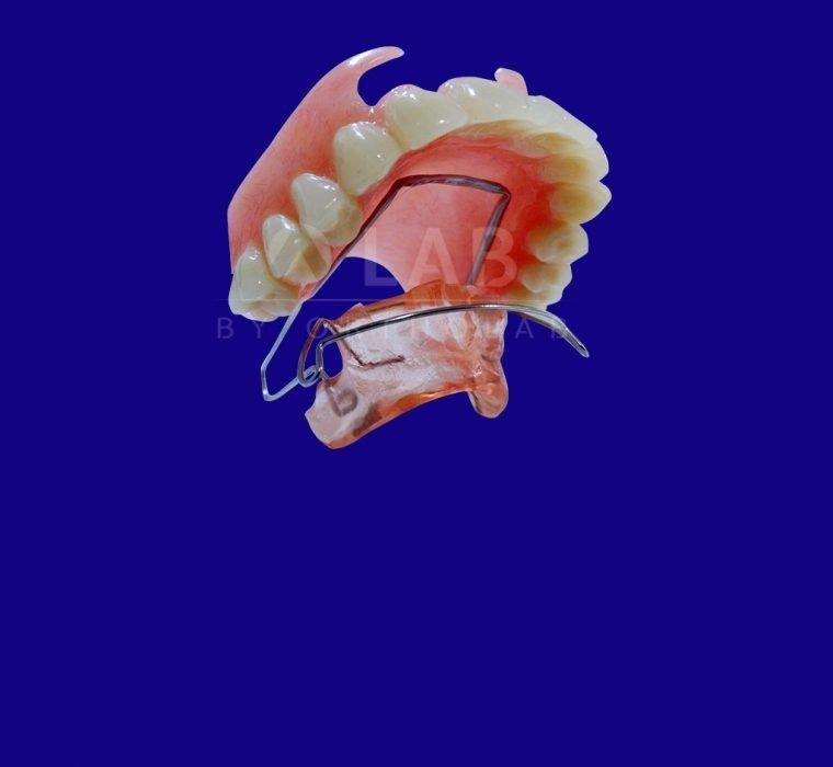 Estabilizador Equilibrio con Prótesis Aparatologia RNO