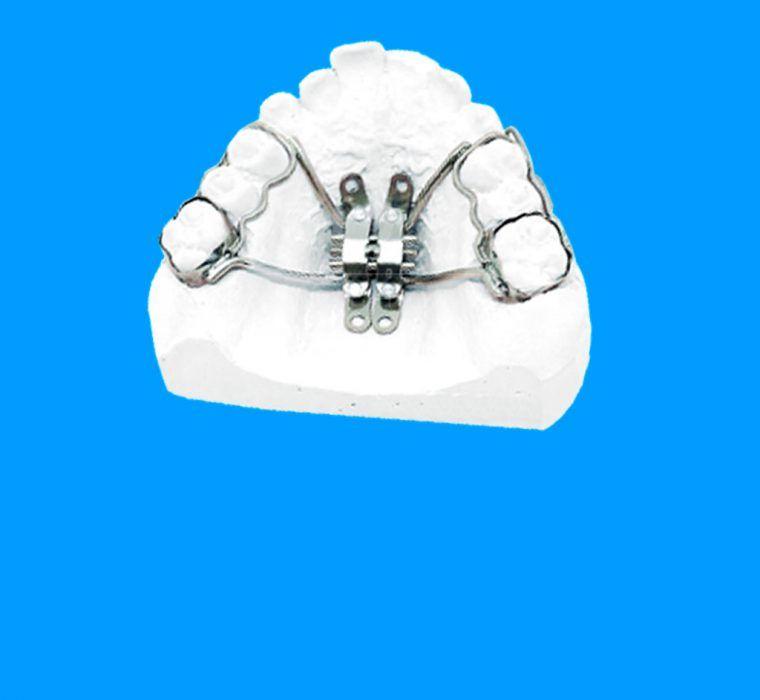 KBE Aparatologia Ortodoncia con Microtornillos