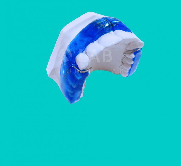 nte con Expansion Placas Activas Ortodoncia