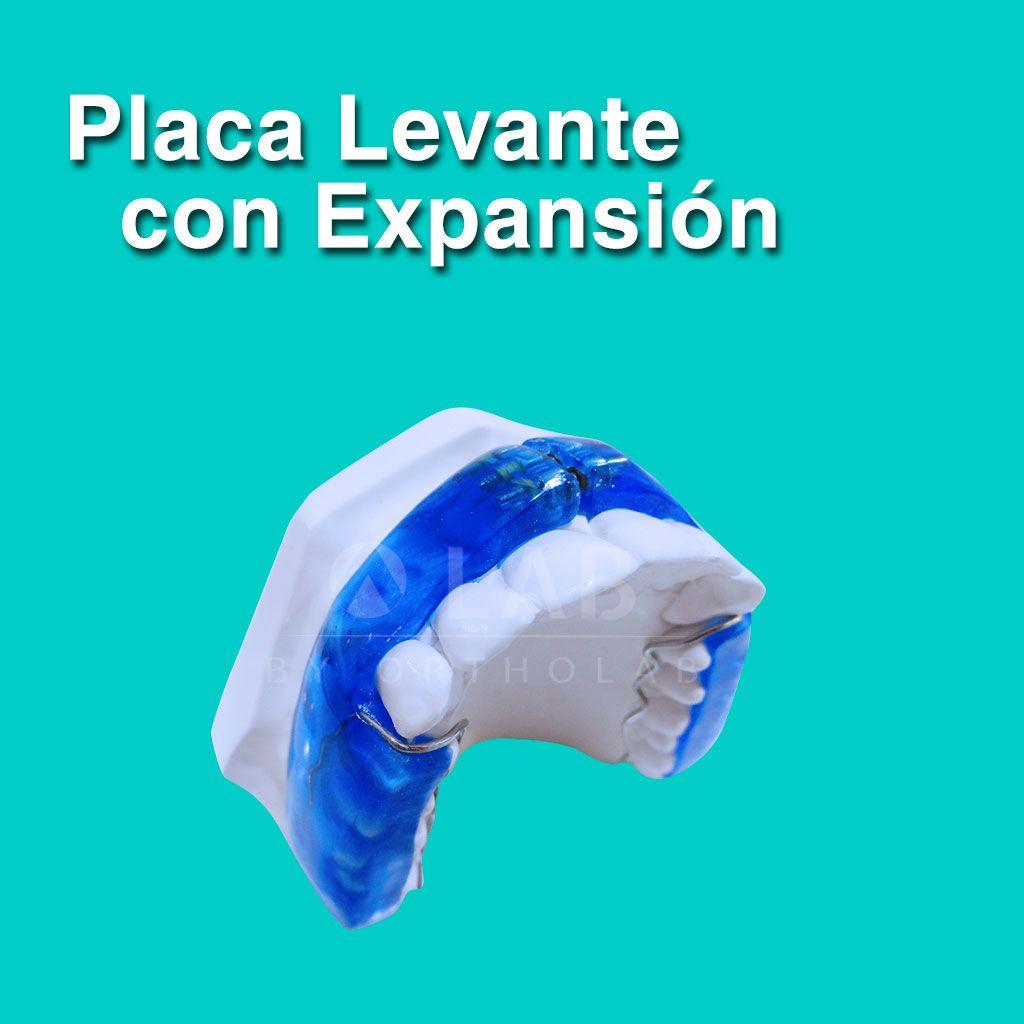 Placa Levante con Expansion Placas Activas Ortodoncia