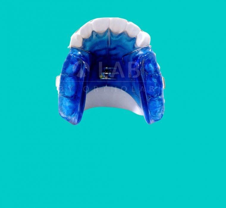Placa para Centrar Mordidas placas activas ortodoncia