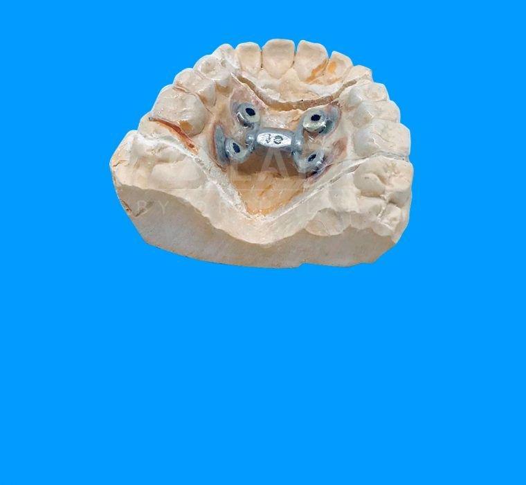 power Screw a 4 Micros Aparatologia Ortodoncia con Microtornillos