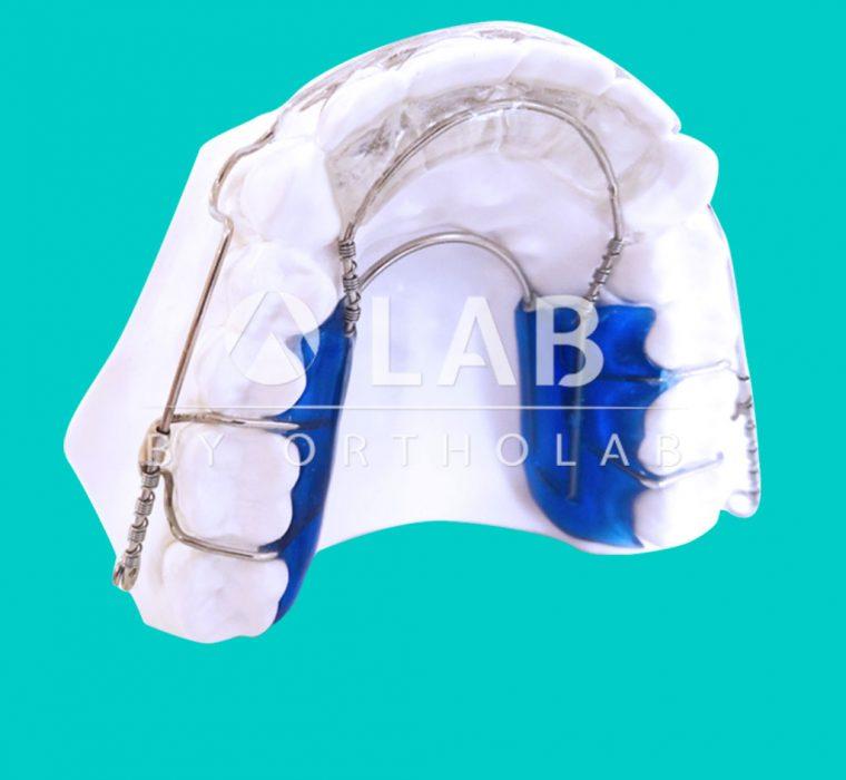 Alineador Inman Placas Activas Aparatología Ortodoncia