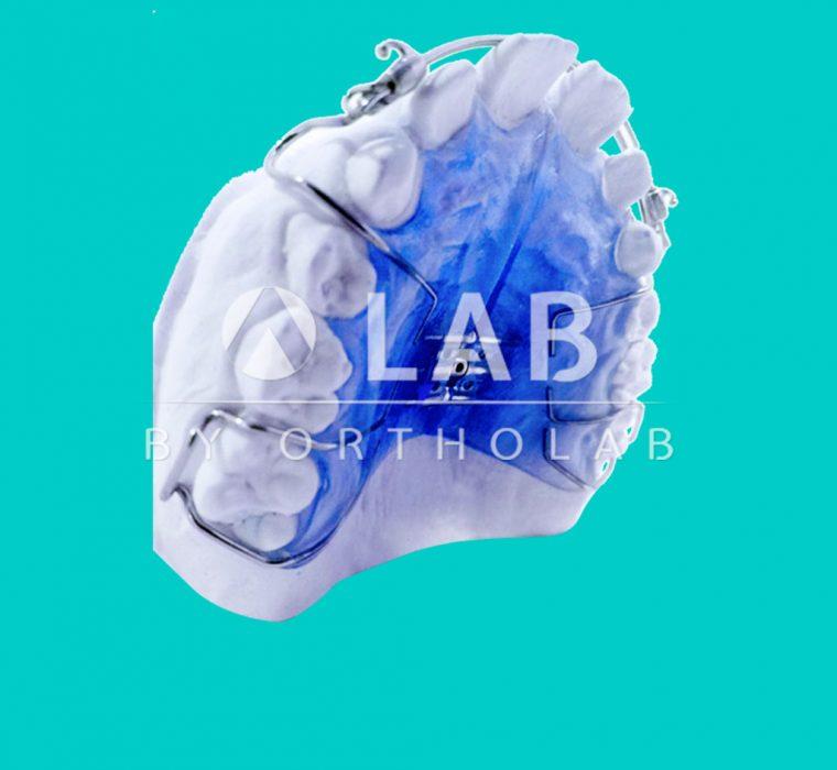 Placa Auto Hawley Aparatolgia Ortodoncia Placas Activas