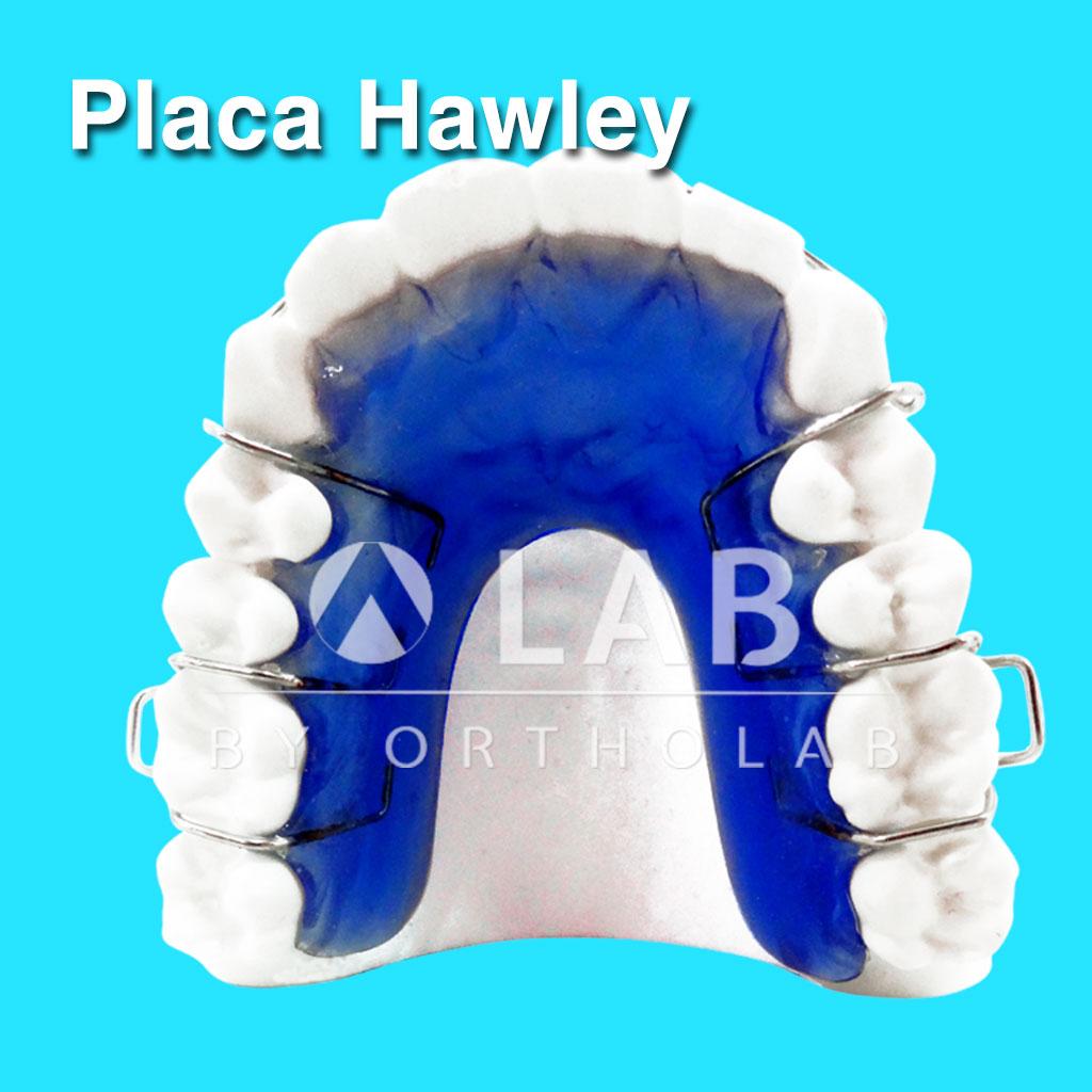 Placa Hawley aparatologia ortodoncia retencion