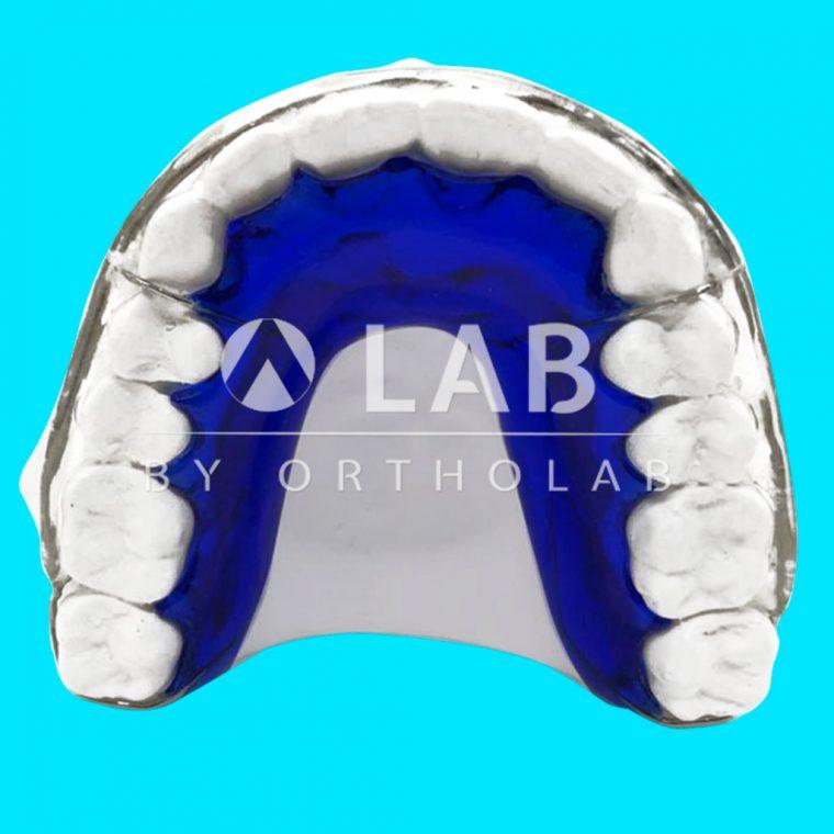 Placa Huella Aparatologia Ortodoncia Retencion