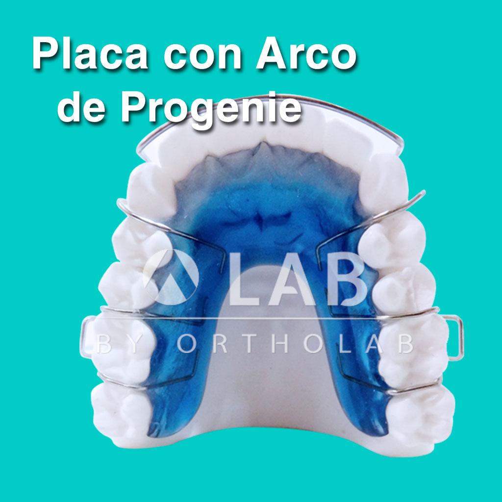 Placa con Arco de Progenie Placas Activas Aparatologia Ortodoncia
