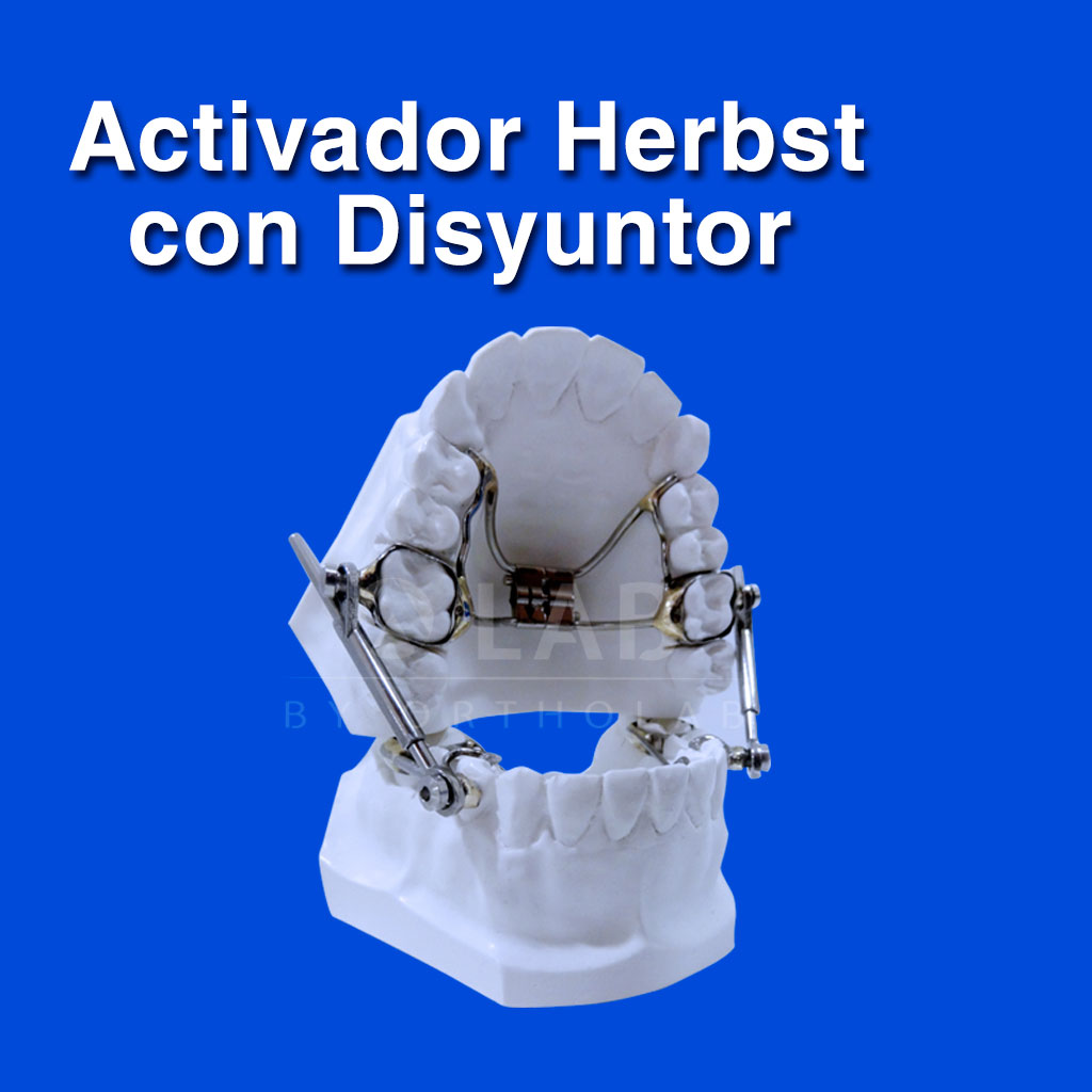 Activador Herbst con Disyuntor - Aparatología Ortodoncia Funcional